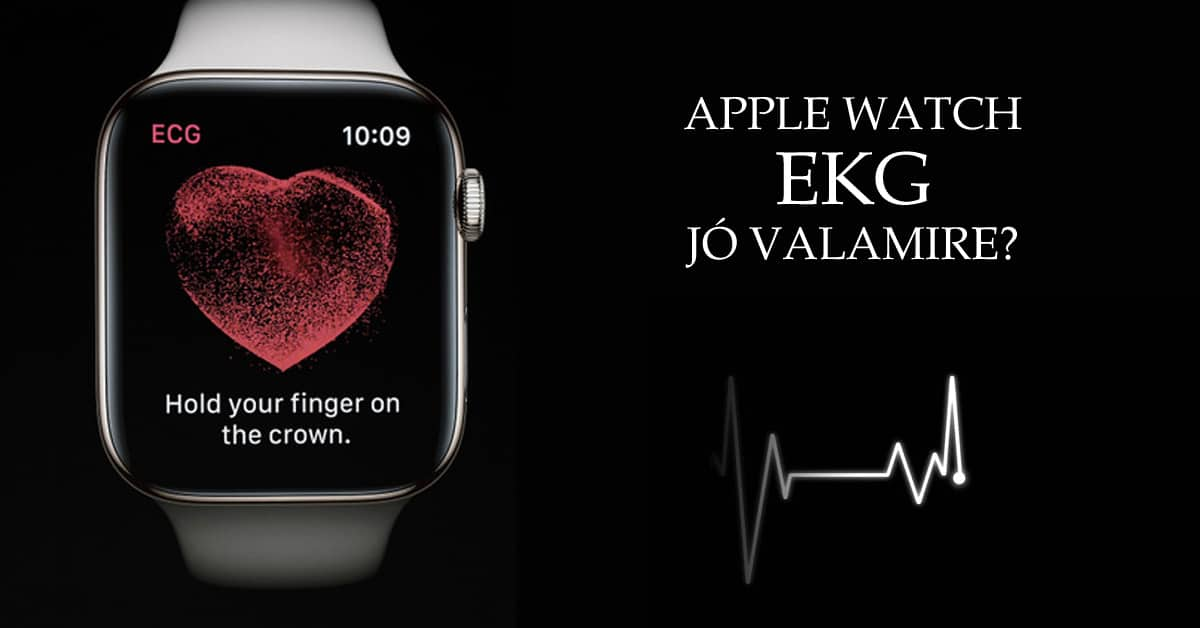 Apple Watch EKG – jó valamire?